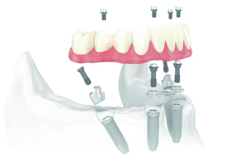 Diagram of All on 4 Dental Implant supported dentures for tooth replacement from Davis Dental Practice