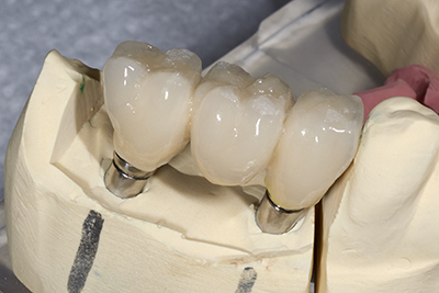Porcelain fixed bridges done by our dentist at Davis Dental Practice