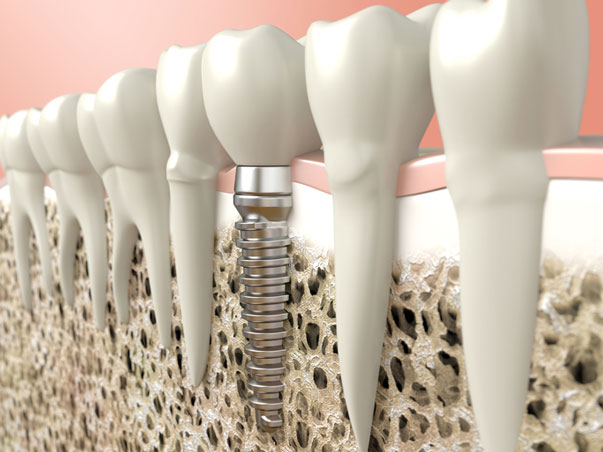 Modeling image of dental implant procedure
