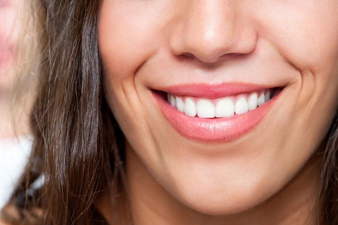 Close up image of a woman smiling after getting composite dental fillings at Davis Dental Practice in Davis, CA