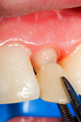Why Teeth Getting Veneers Require Trimming First in Most Cases