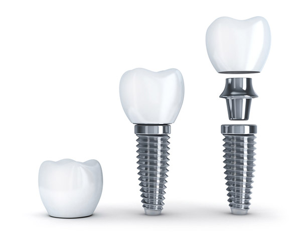 Diagram of a dental implant with the post