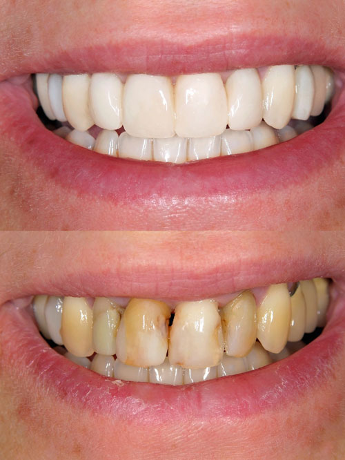Contact Davis Dental Practice with questions about dental veneers.